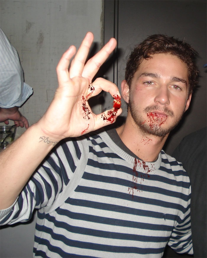 shia-labeouf-pulls-tooth-picture[3] Shia Labeouf